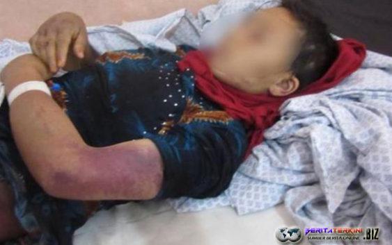 Seorang Suami di Afghanistan Tega Menyiksa Istrinya Yang Sedang Hamil