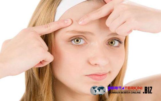 Masa Pubertas Sudah Lewat Tapi Jerawat Terus Muncul? Berikut Penyebabnya